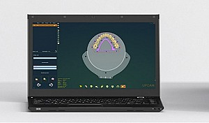UP3d - Dental CAM Software UPCAM
