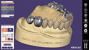 Shining3D - CAD/CAM EXOCAD (standard version)