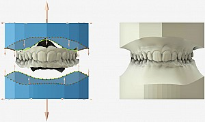 """Shining3D - CAD/CAM Maestro 3D Ortho """"A"""" config"""